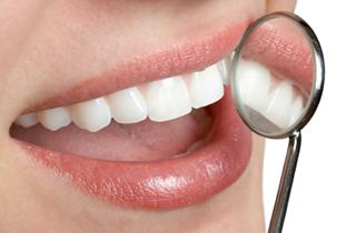 Dental Crowns in Ocala